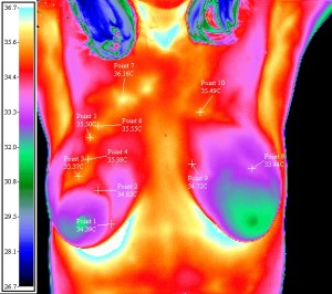 THermography for early detection of breast changes